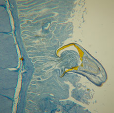 Hookworm attached to dog intestine